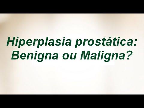 Tratamento das pessoas da próstata
