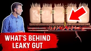What's Really Behind Leaky Gut