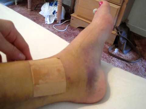 Tibia & Fibula Broken Leg Diary