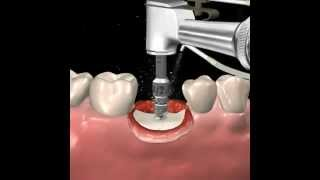 Step by step dental implant surgery.  Gary R. O'Brien, D.D.S.