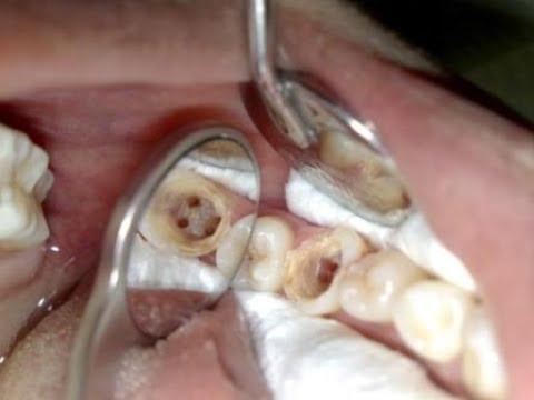 Inilah 6 Cara Cepat Mengobati Sakit Gigi Berlubang Juragan