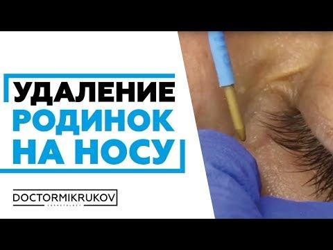 Виферон мазь лечение бородавок