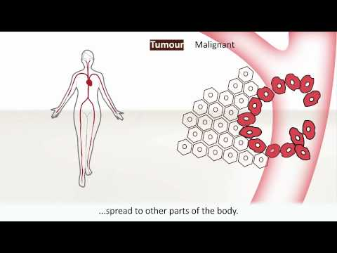 Video Cancer - Causes and treatment of cancer