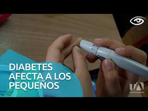 Diabetes mellitus tipo 3 wikipedia
