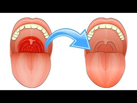 Wie die Brust mit der Operation zu vergrössern
