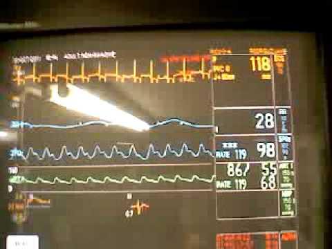 Correr para la hipertensión 2