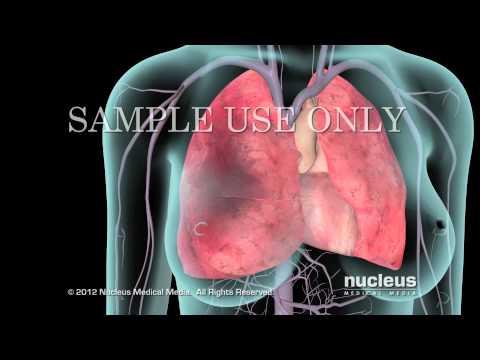 Lo que llama la atención en el riñón o el corazón hipertenso