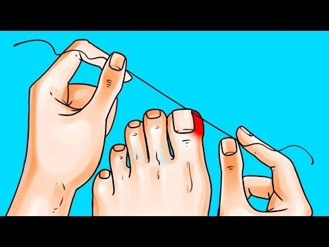 Infiammazione intorno a ununghia su una mano senza trattamento di pus