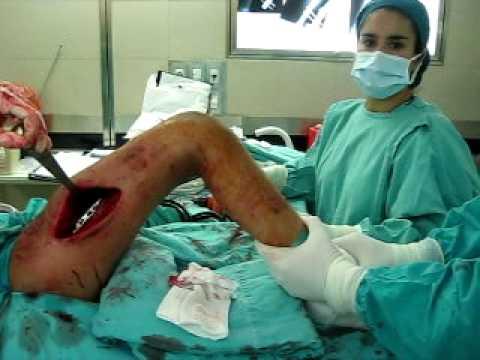 Donde hacen la cirugía de reemplazo de rodilla