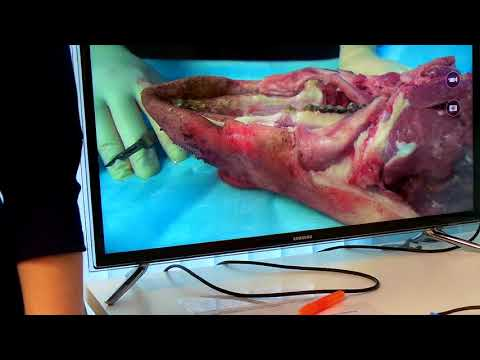 Хирургическое лечение рецессий десны в области зубов и имплантатов. Часть 11