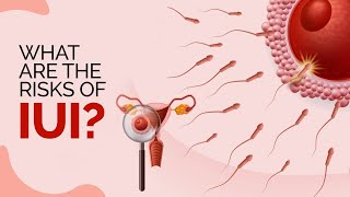 How does IUI work? What are the risks of IUI?