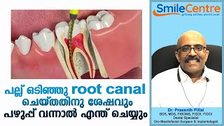 Pus after root canal - Video