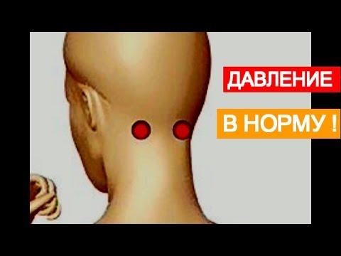 Гипертония и нарушение мозгового кровообращения