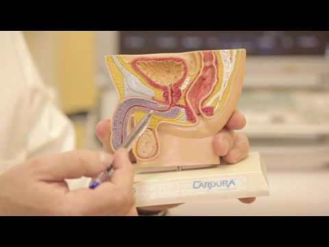 Где оперируют рак предстательной железы