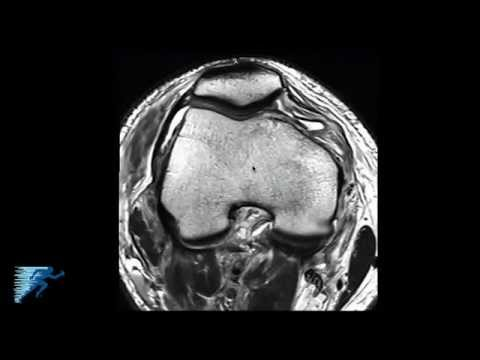 How to Read Knee MRI of PLC Injury