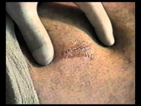 Die Ursachen von Hernien der Bandscheiben