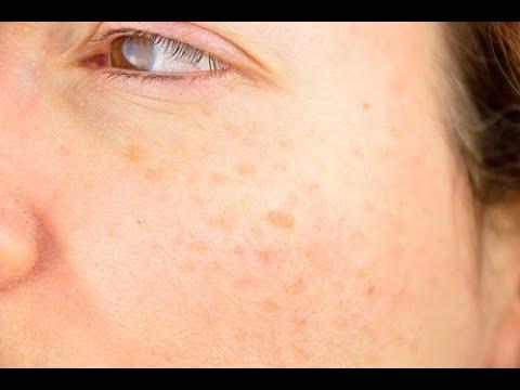 Der Sonnenschutz für die Person von den Pigmentflecken die Creme