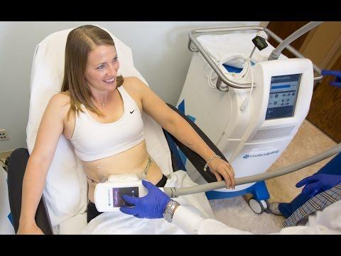 Riabilitazione dopo rimozione di una vena su una gamba il laser