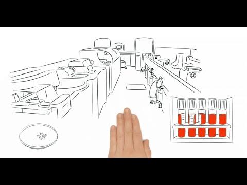 Verletzt die Nieren bei Diabetes, was zu tun