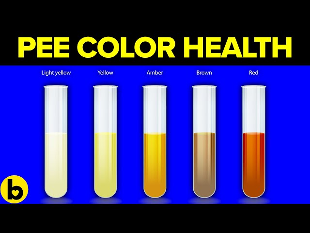 The Color Of Your Pee Can Say This About Your Health