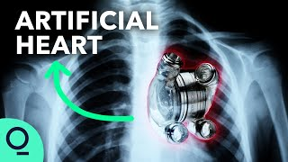 Permanent Artificial Hearts Are Closer Than You Think