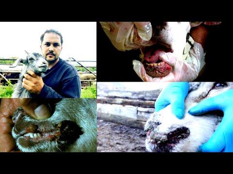 Le papillomavirus humain symptomes