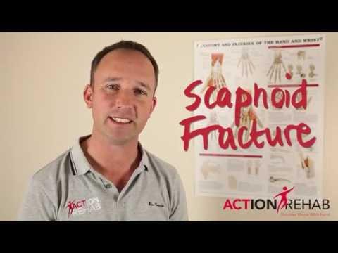 Modern gyógyszerek a térd artrózisának kezelésére