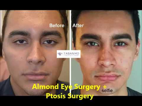 lower eyelid and canthus elevation droopy upper eyelid ptosis surgery almond eye shape.