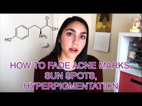 Facial mga review ng pigment spots