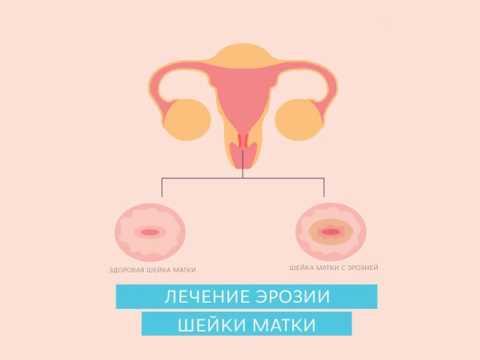 Warikos auf den Geschlechtsorganen die Salbe