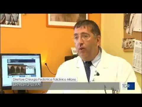 Come utilizzare radice di bardana nel diabete