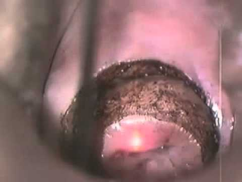 Online film sesso telecamera nascosta