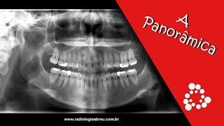 EXAME - Radiografia Panorâmica - Radiologia Odontológica Abreu