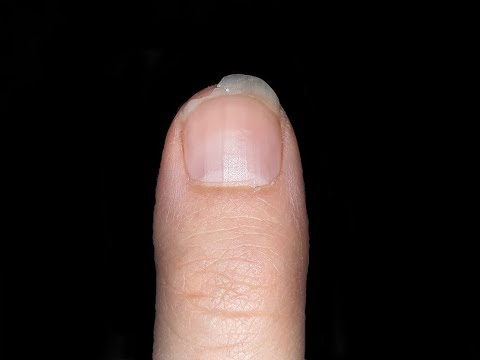 Gribok der Nägel eksoderil die Analoga