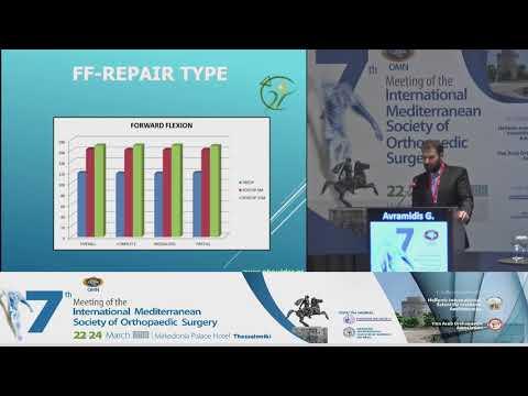 "Polyzos A - ""Internal brace"". A hybrid - endoscopic type of treatment for acute Achilles tendon ruptures"