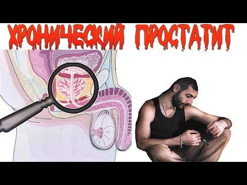 Лечение простатита врачом