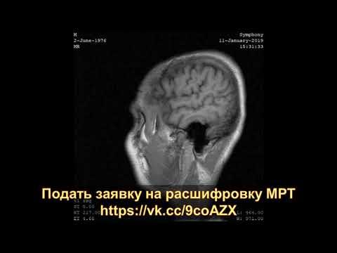 Рассеянный склероз на результатах МРТ головного мозга при расшифровке диска МРТ (второе мнение)