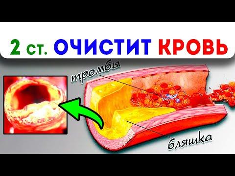 Вся погань в крови исчезла! Мощное народное средство из 4 ингредиентов для очищения крови