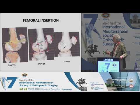 I. Michos - Medial Patellofemoral Ligament (MPFL), reconstruction with Hamstring tendon