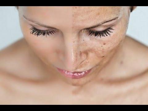 Крема от пигментные пятна на лице