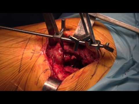 A burgonya artrózis kezelésére szolgál