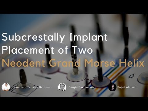 Implant placement of 2 GM Grand Morse Helix to restore two molars.