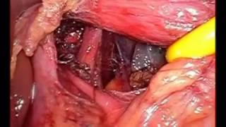Laparoscopic Fundoplication operation for Hiatal Hernia (GERD)