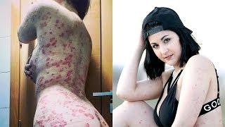 Model Promotes Psoriasis Positivity   SHAKE MY BEAUTY