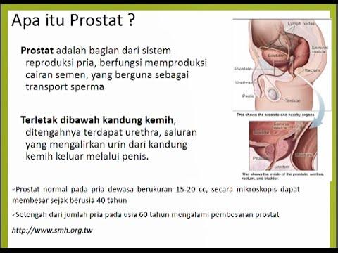 Antibiotikum a prosztatitis ellen