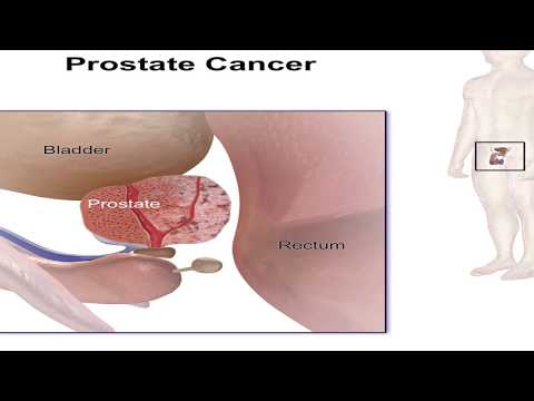 Calcifications in the prostate laser treatment