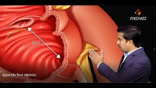 Animated Gross anatomy of Appendix: Position, Blood supply, Venous drainage, Nerve supply, Histology