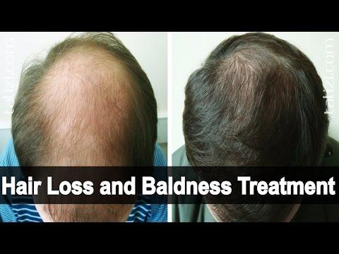 Erythematosus at Alopecia