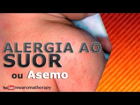 Dermatite de atopic à criança tratamento de 1 ano