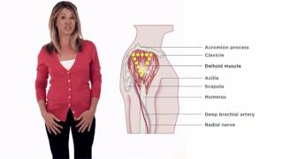 Invega Sustenna - How to Video